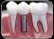 Ağız Diş Çene Cerrahisi ve İmplantoloji