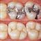 Konservatif Diş Tedavisi ve Endodonti (Kök Kanal Tedavisi ve Dolgu)