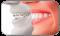 Ortodonti (Çapraşık Dişlerin Tedavisi)